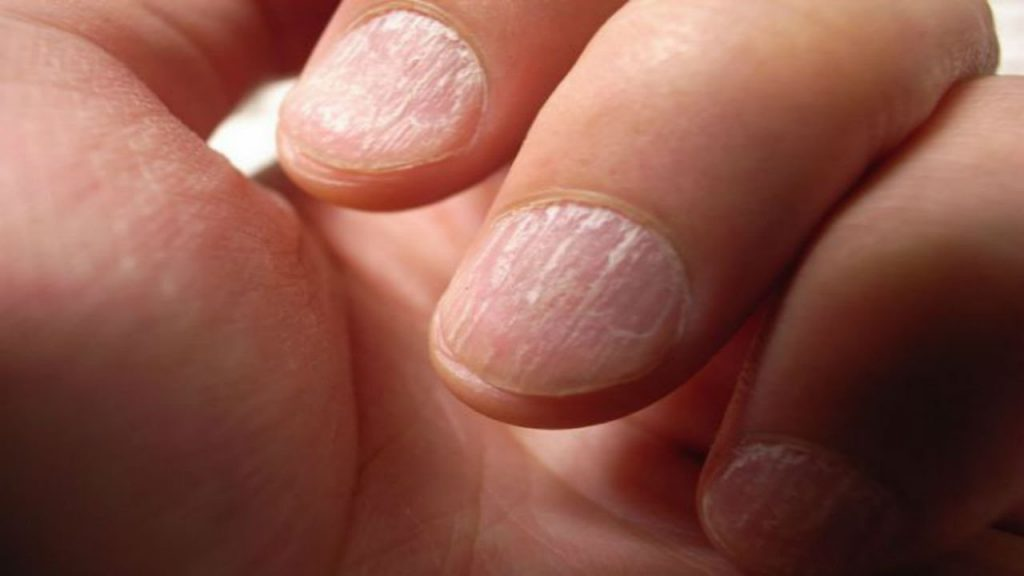 Are Clean Nails Essential For Wellness? – Marco & Melissa\'s Health ...
